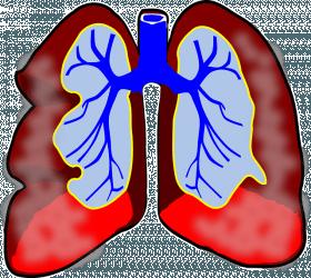 kranke Lunge, Asthma und chronische Bronchitis